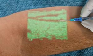 Luz infravermelha emitida pelo aparelho facilita a vida de pacientes, enfermeiros e médicos